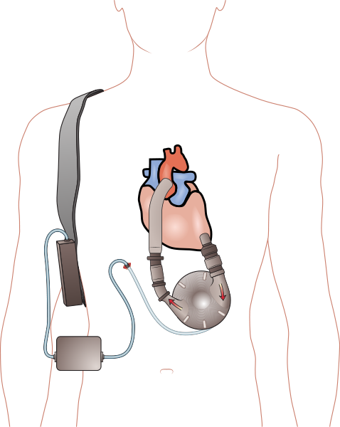 Pierce-Donachy Ventricular Assist Device